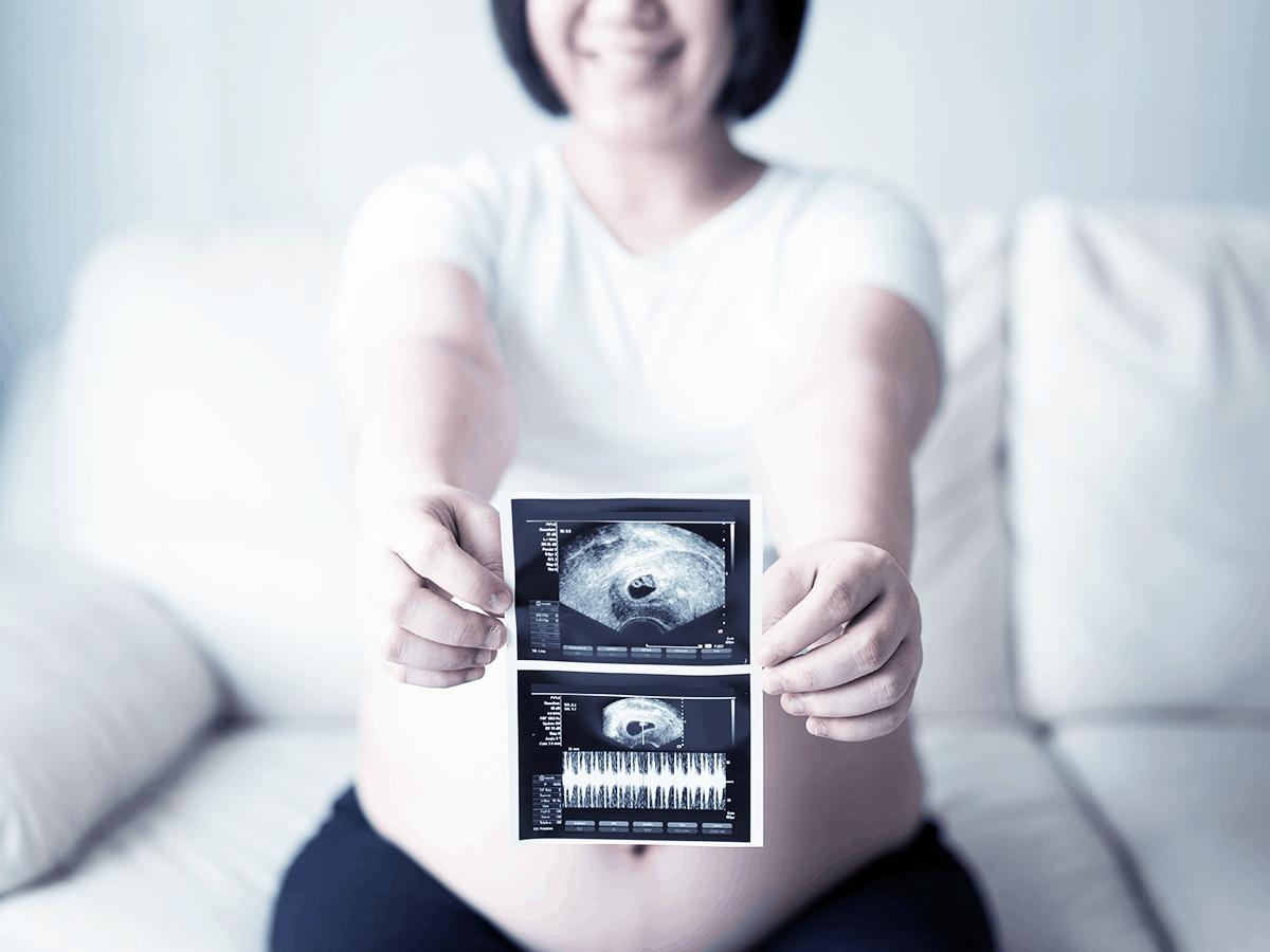 schwangerschaft-kinderwunsch-ultraschall-frauenarzt-praxis-aschaffenburg